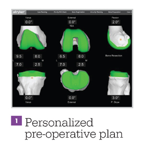personalized pre-operative plan