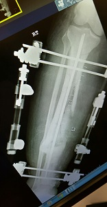 x-ray of rods in leg