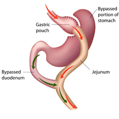 roux-en-y gastric bypass procedure illustration
