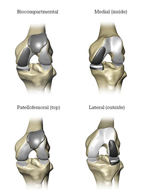 diagram of areas of the knee