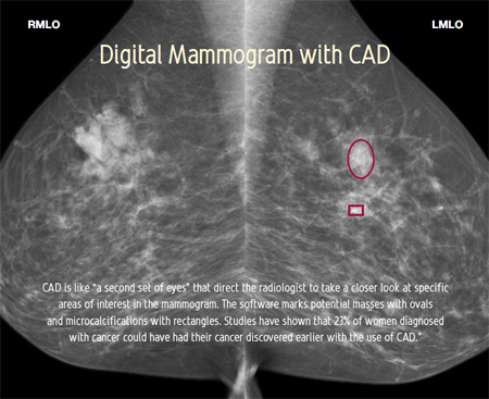 Digital mammogram with CAD