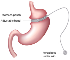 laparoscopic adjustable gastric band illustration
